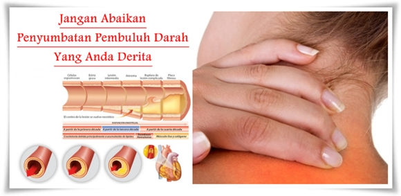 Obat Penyumbatan Pembuluh Darah Herbal Paling Ampuh